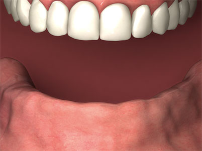 before teeth xpress no denture